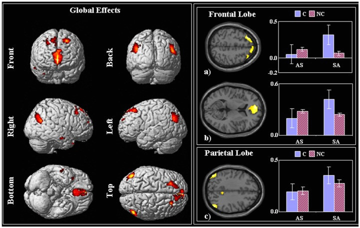 on the left the spm t p005 fwe corrected of the global task effect stimuli vs fig3 261102439