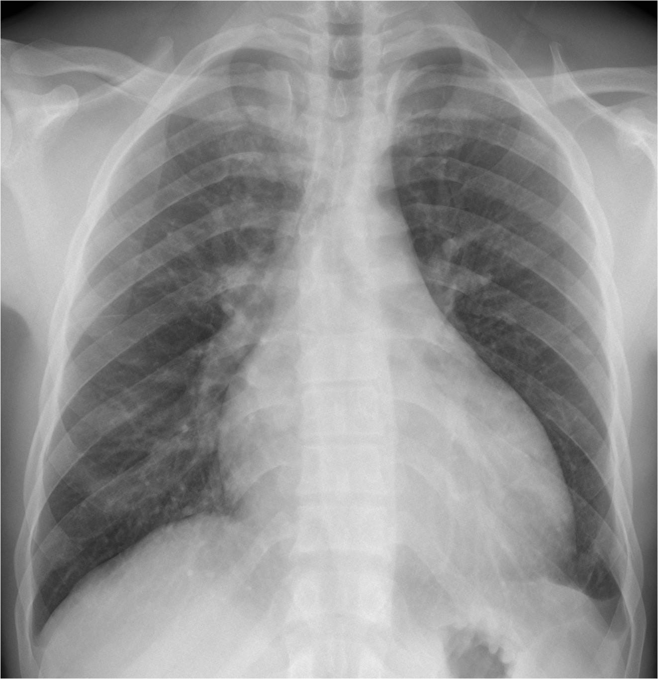 Right Cardiac Border X Ray Caceres Corner Case 198 solved European Diploma Of
