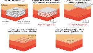 Integra Dermal Regeneration Template Three Dimensional Tissue Cultures and Tissue Engineering