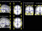 Mni Template A Study Of the Standard Brain In Japanese Children