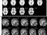 Mni Template Frontiers Age Specific Mri Brain and Head Templates for